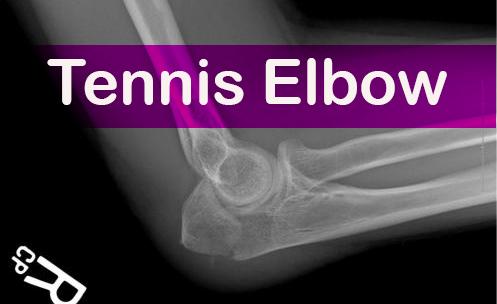Tennis elbow Blog