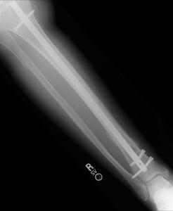 broken-leg-xrayseries-7-1617267