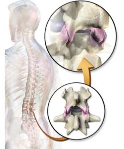 Efects of Spinal Traction