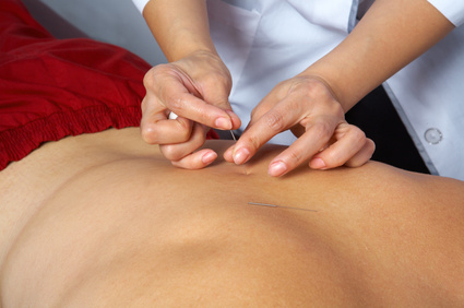 Physical Therapist treating chronic back pain with IMS therapy